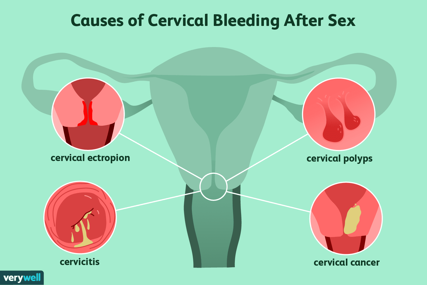 Is it normal to bleed during sex